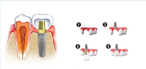 (Kỹ thuật cấy ghép Implant)