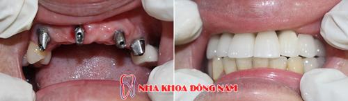 (Cấy ghép Implant mang lại nhiều lợi ích tối ưu)